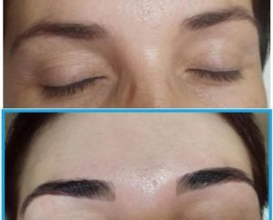 before-after-brow-495x400